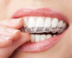 Orthodontist in Chattanooga, TN | Scenic City Orthodontics